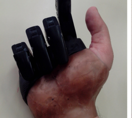 Improve a hand prosthesis (after)