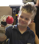 How 3D printers built a replacement hand for a little boy